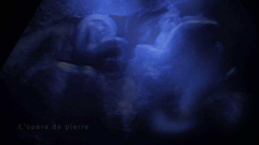 échographie - Film l'Opéra de pierre réalisé par Dominique Martigne